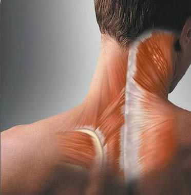 Лечение спазма мышц шеи, что поможет и что