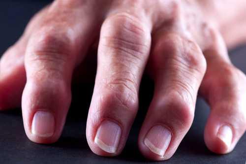 Воспаление суставов пальцев рук: симптомы,