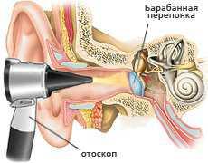 Боль в ухе может быть при попадании инородного тела, например, мелких предметов или деталей игрушек