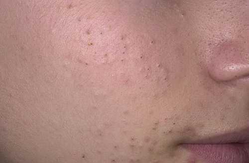 Комедоны на лице