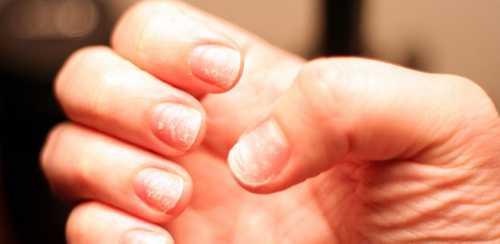 Почему слоятся ногти: что делать