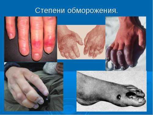 Лечение обморожение в домашних условиях: первая